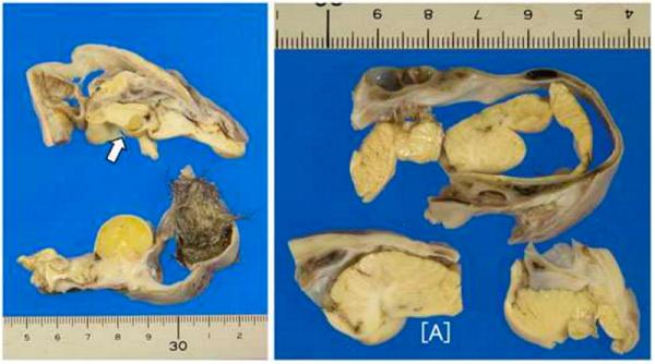 tumor-ovario-cerebro